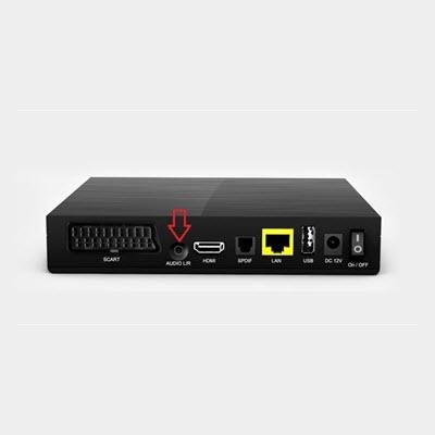 Arcadyan HBM2260 tv-ontvanger